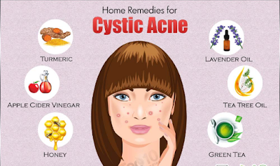 home-remedies for-crystic-acne