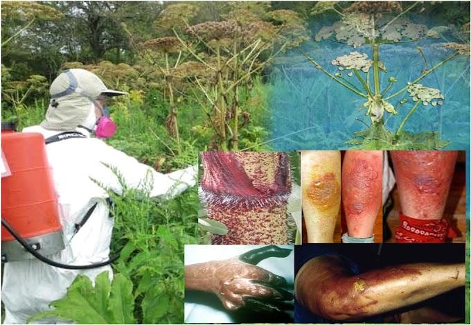 Se esparce en Nueva York planta gigante cuya savia causa quemaduras graves y ceguera