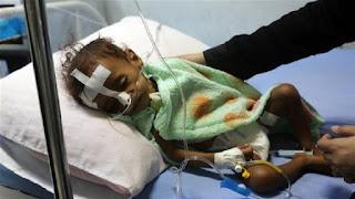 Dampak Pemberontakan Syiah di Yaman; 85.000 Anak Diperkirakan Meninggal Dunia