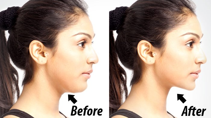 5 Extremely Easy Exercises To Get Rid Of Double Chin And