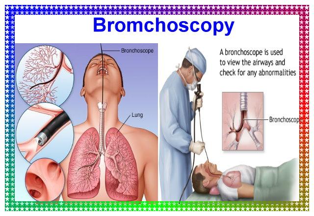 Bromchoscopy