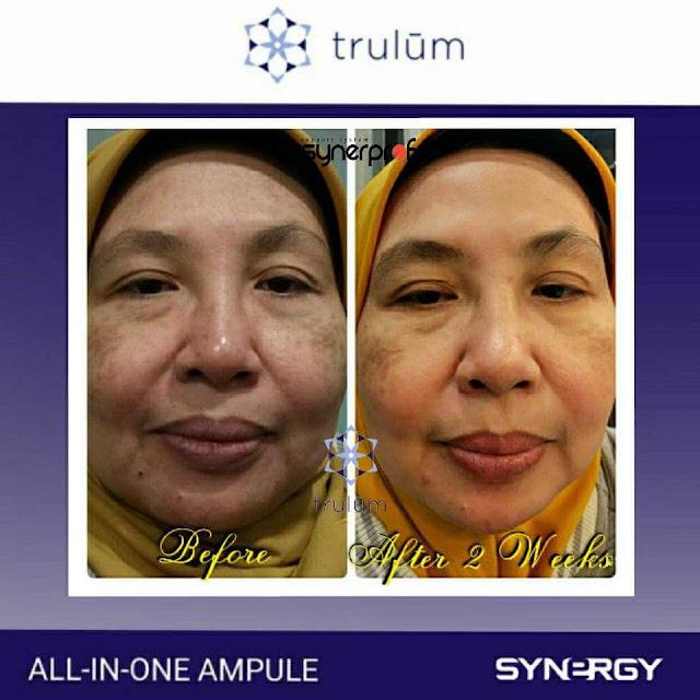 Jual Trulum Serum Anti Aging Di Dampit