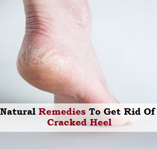Natural Remedies To Get Rid of Cracked Heel