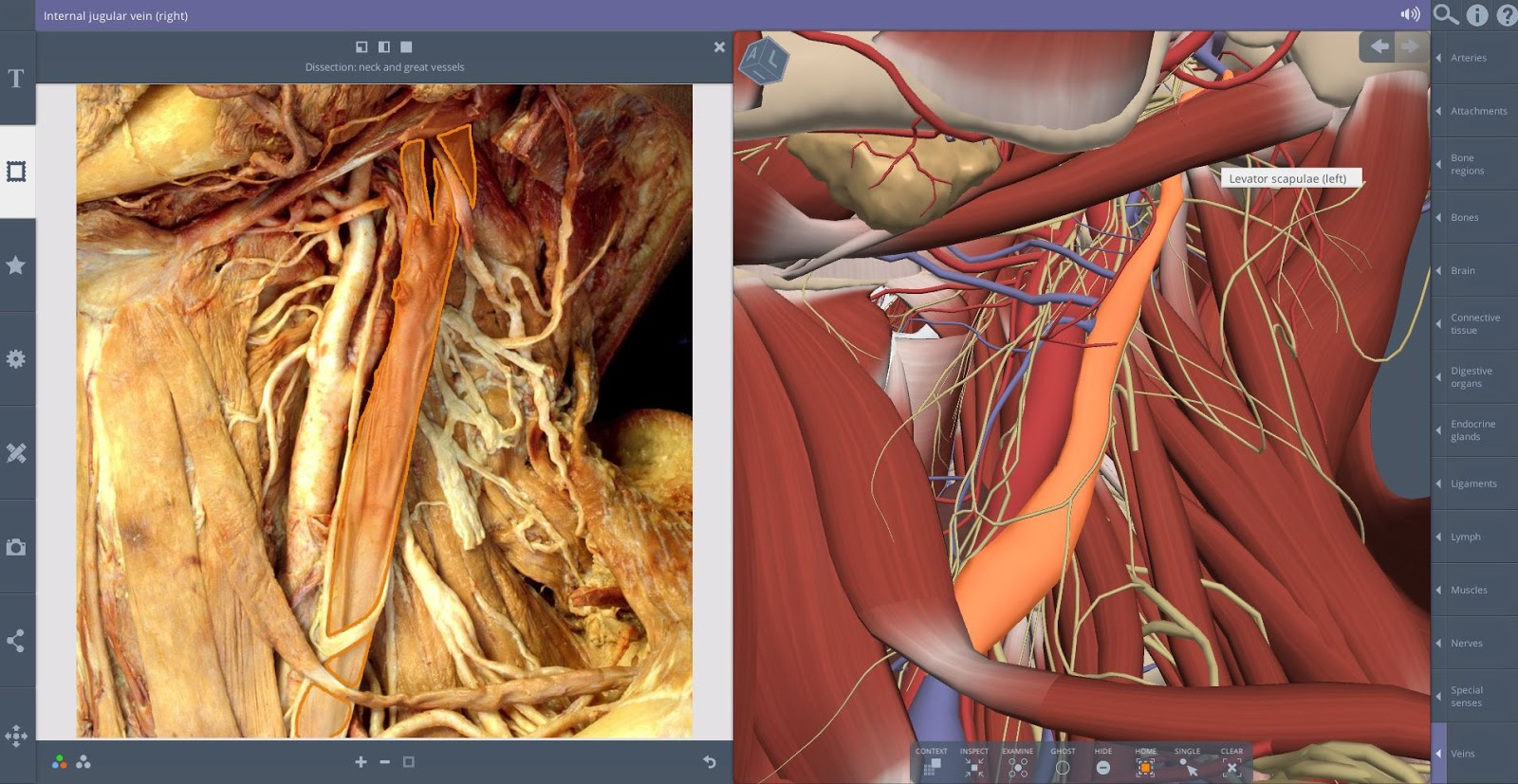 Li Ping Medical Library Cuhk New Features Of Anatomy 3d Real