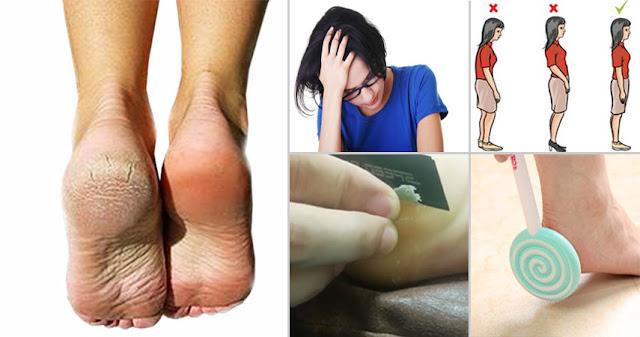 cận cảnh cắt da gót chân