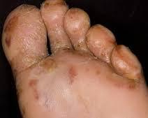 cara mudah dan cepat mengobati eksim basah di kaki