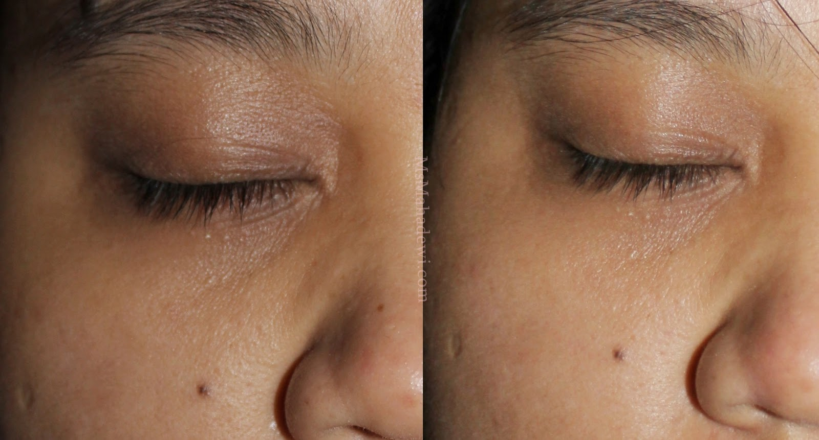 Ms Mahadewi Review Bio Oil To Discover Your Happy Skin