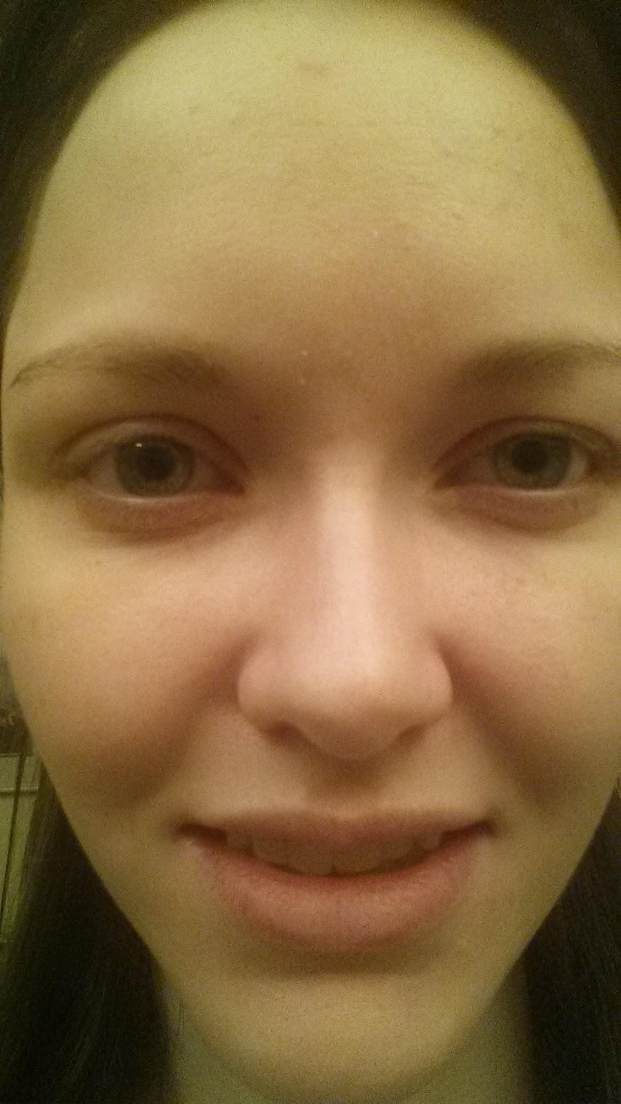 BERNICE: Chronic facial pain and swelling