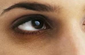घरेलू नुस्खे: आंखों के काले घेरे हटाना है तो आजमाएं ये आसान उपाय
