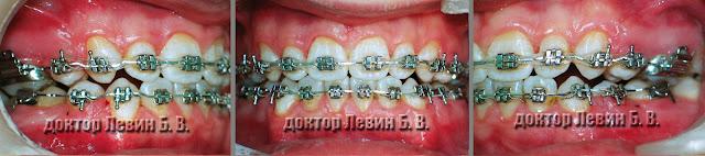 Три фото зубов характеризующие прикус пациента на 16 месяце лечения брекетами.