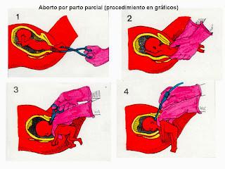 Resultado de imagen para ABORTO POR PARTO INCOMPLETO