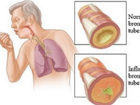 Dampak Pencemaran Udara