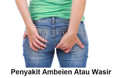 informasi tentang penyakit wasir luar dalam atau ambeien Hemoroid   cara mengobati ambeien   tanda-tanda penyebab gejala dan pengobatan ambeien wasir Hemoroid