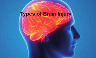 Types of Brain Injury
