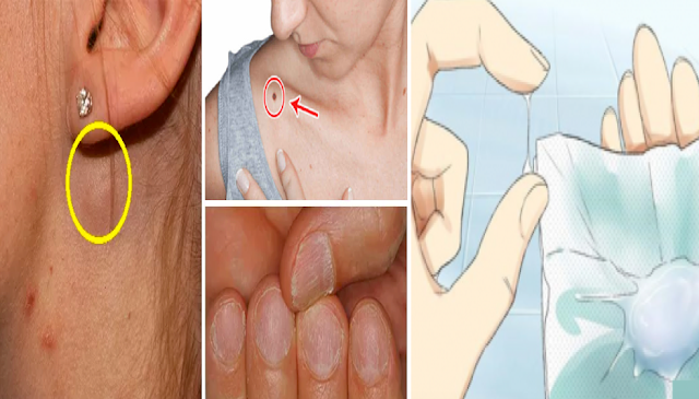 Early Dangerous Signs Of Diseases Women Should Not Ignore