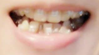 歯列矯正器具取付 初日