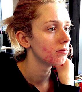 como eliminar acnes do rosto