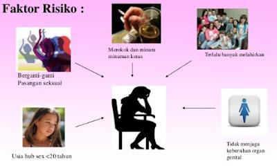 Faktor Resiko Kanker Serviks