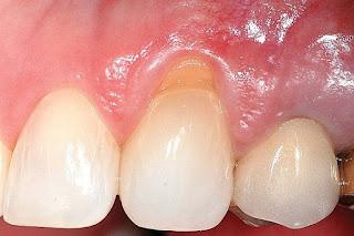 Dents blessures lors de la consommation d'eau froide