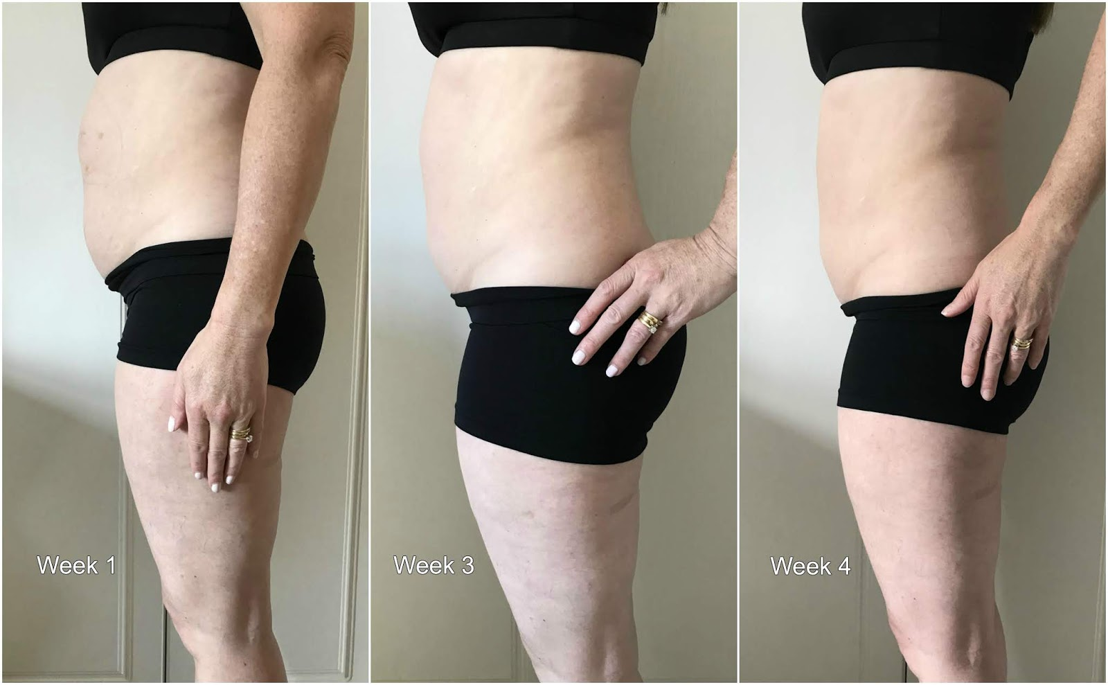 Coolsculpting \ Hampton Clinic \ Solihill \ West Midlands \ fat freezing \ cryolipolysis \ before and after photos \  Priceless Life of Mine \ over 40 lifestyle blog