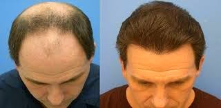 Electricals,Hair Loss,Health & Wellbeing,Vitamins & supplements
