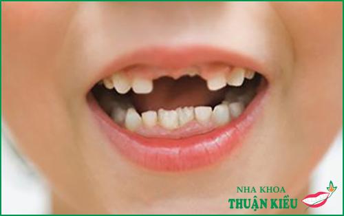 Các giai đoạn mọc răng của bé