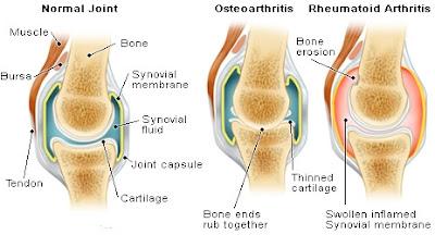 Obat Herbal Pengapuran Tulang (Osteoarthritis) Tanpa Efek Samping