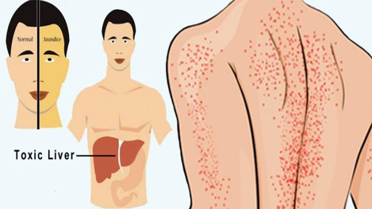 خطير.. إذا ظهرت عليك هذه العلامات تأكدي أنك مصابة بالتهاب الكبد