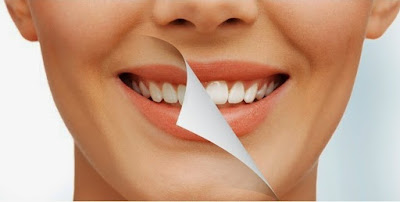 Cara Memutihkan Gigi Kuning Secara Cepat