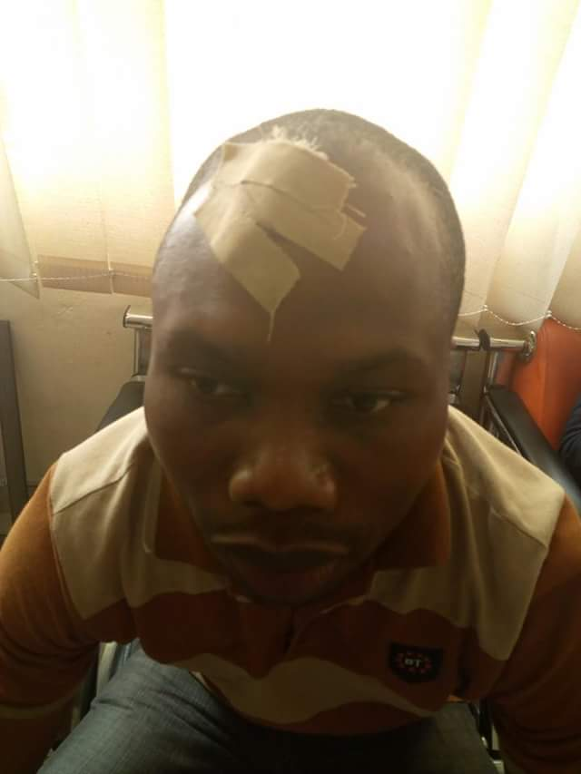 Photos: Man escapes alleged assassination attempt in Bayelsa