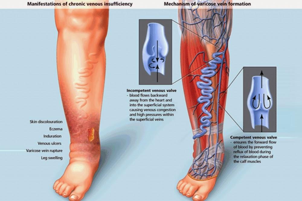 Úlceras nas pernas podem ser causadas pela presença de varizes