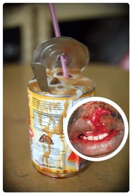 Kenapa Minum dalam Tin (Viral) Bahaya? Ini Sebabnya!