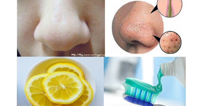 8 best scrubs to remove blackheads on nose - 695×364