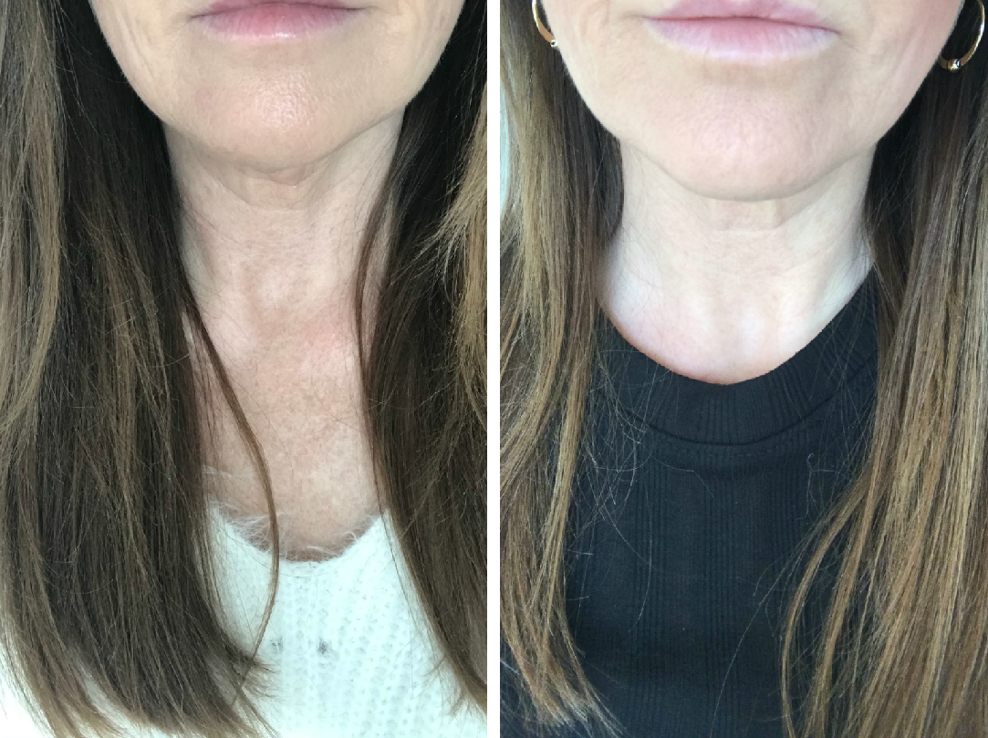 Before and after phots after Profhilo treatment