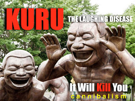 KURU -THE LAUGHING DISEASE