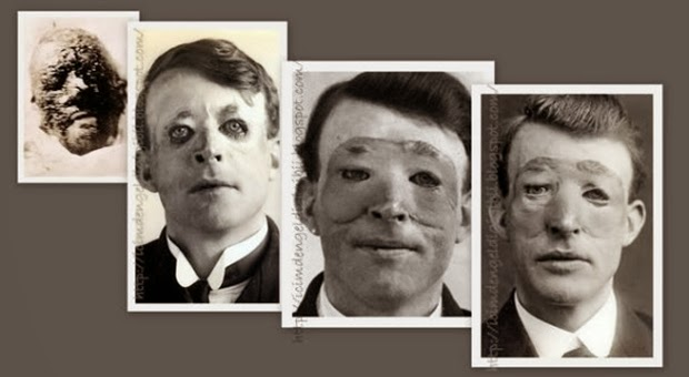 Walter Yeo, People First Doing Plastic Surgery ...  Walter Yeo Skin Graft