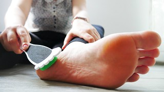 Tips for removing calluses from your feet best natural  way !!