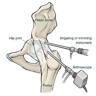http://www.jointsreplacementindia.com/hip-arthroscopy/