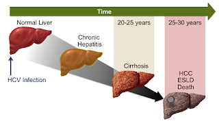 liver cancer last stages