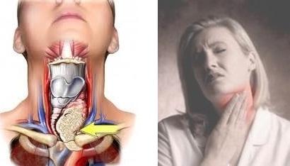 Ciri Ciri,Gejala,Penyebab Penyakit Gondok & Obat Herbalnya