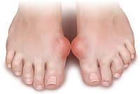 Gut Hastalıklı Ayak Fotoğrafı