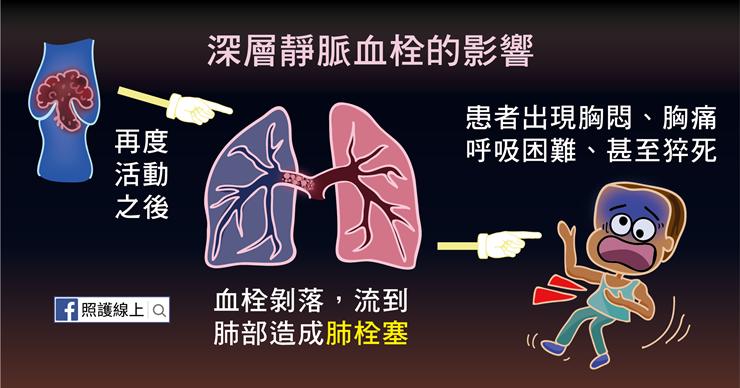 深層靜脈血栓可能導致肺栓塞