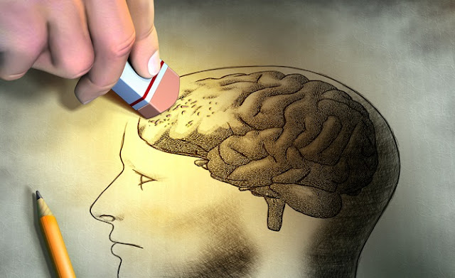 لماذا من يفقد الذاكره لا ينسى اللغه ؟