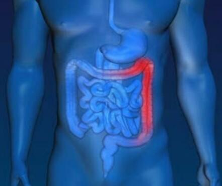Gejala Kanker Usus Besar (Kolon), Penyebab dan Pencegahan ...