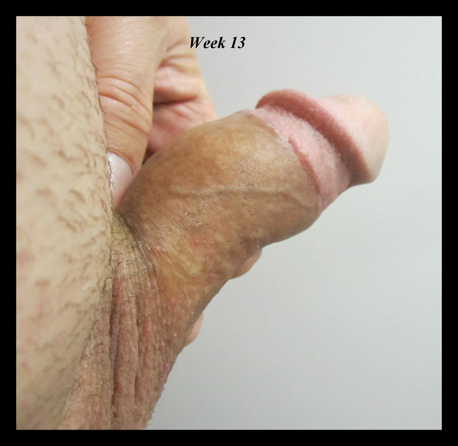 Post Adult Circumcision 92
