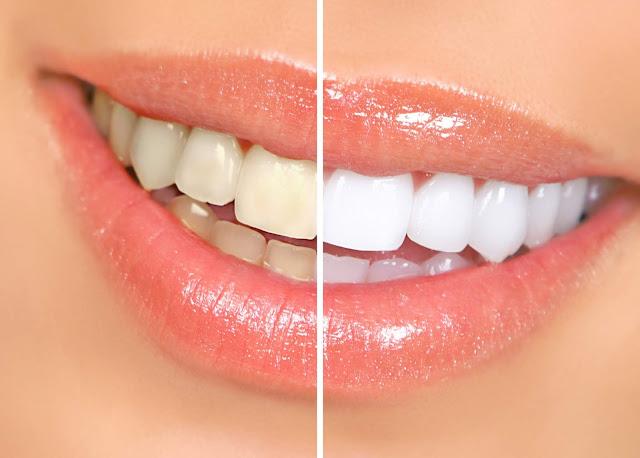 أقوى خلطة لتبييض الأسنان نتائجها من أول استعمال الآن تمتعي بابتسامة جذابة وساحرة