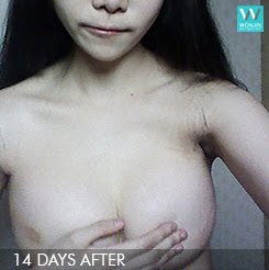 짱이뻐! - Thanks to Korean Celebrities Breast Surgery, Goodbye Padded Bra
