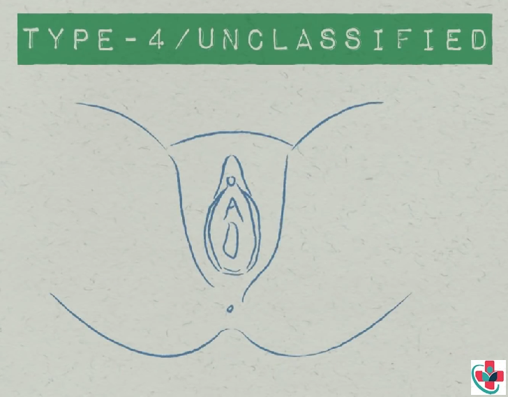 Type IV FGM