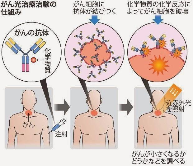 癌光治療 光線 癌