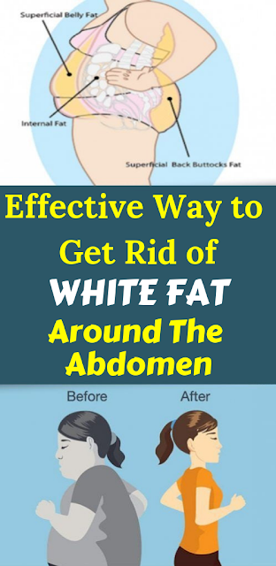 Effective Way to Get Rid of White Fat Around The Abdomen